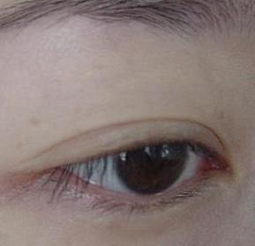 Before - Bare eye